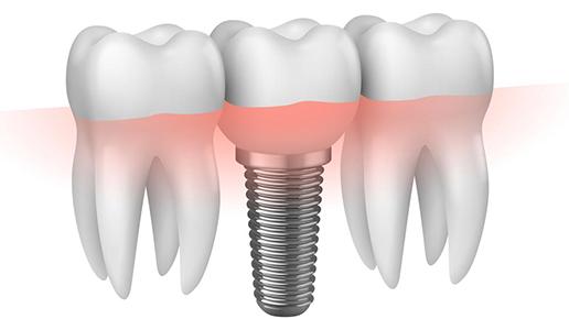 Impianti dentali i prezzi in evoluzione