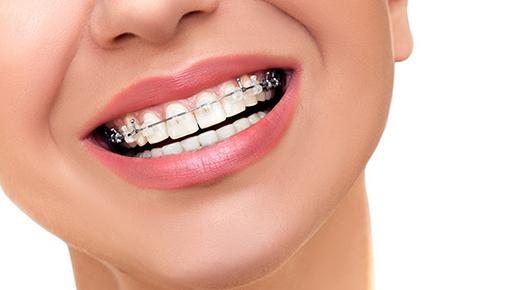 Ortodonzia e denti storti