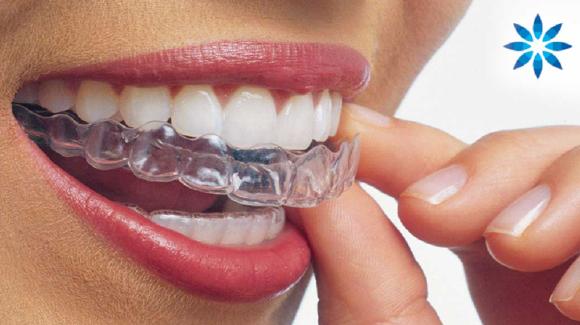 mascherine trasparenti-invisibile ortodonzia
